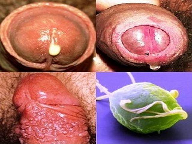Минет через инфекции и симптомы признаки передаются